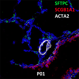 Postnatal Day 1 C57BL6 SFTPC, SCGB1A1, and ACTA2 Confocal Imaging