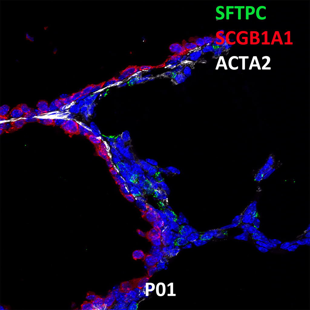 Post Natal Day 1 Confocal Imaging Showing Protein Expression of Sftpc, Scgb1a1, and Acta2 Genes