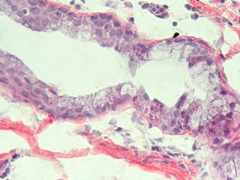 H&E Staining of 9 Month Old Human Lung