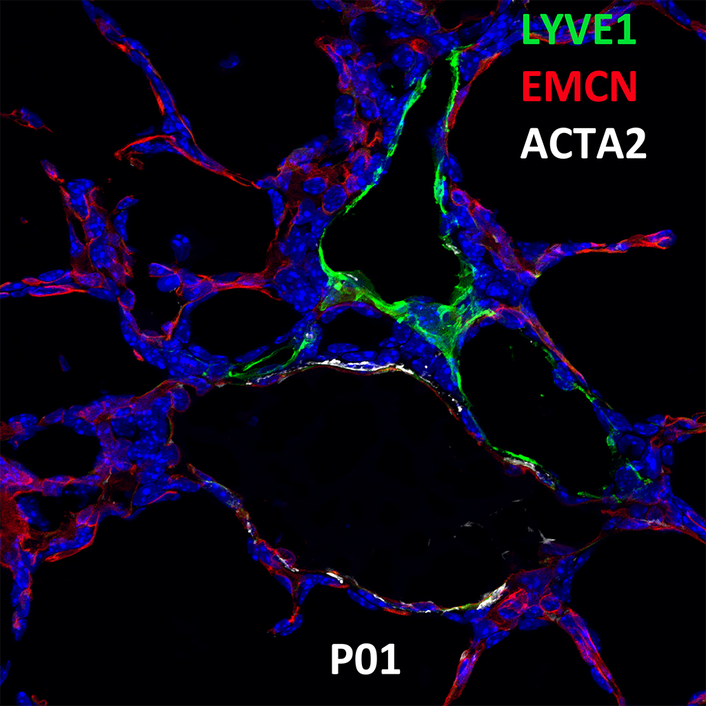 Post Natal Day 1 Confocal Imaging Showing Protein Expression of Lyve1, Emcn, and Acta2 Genes