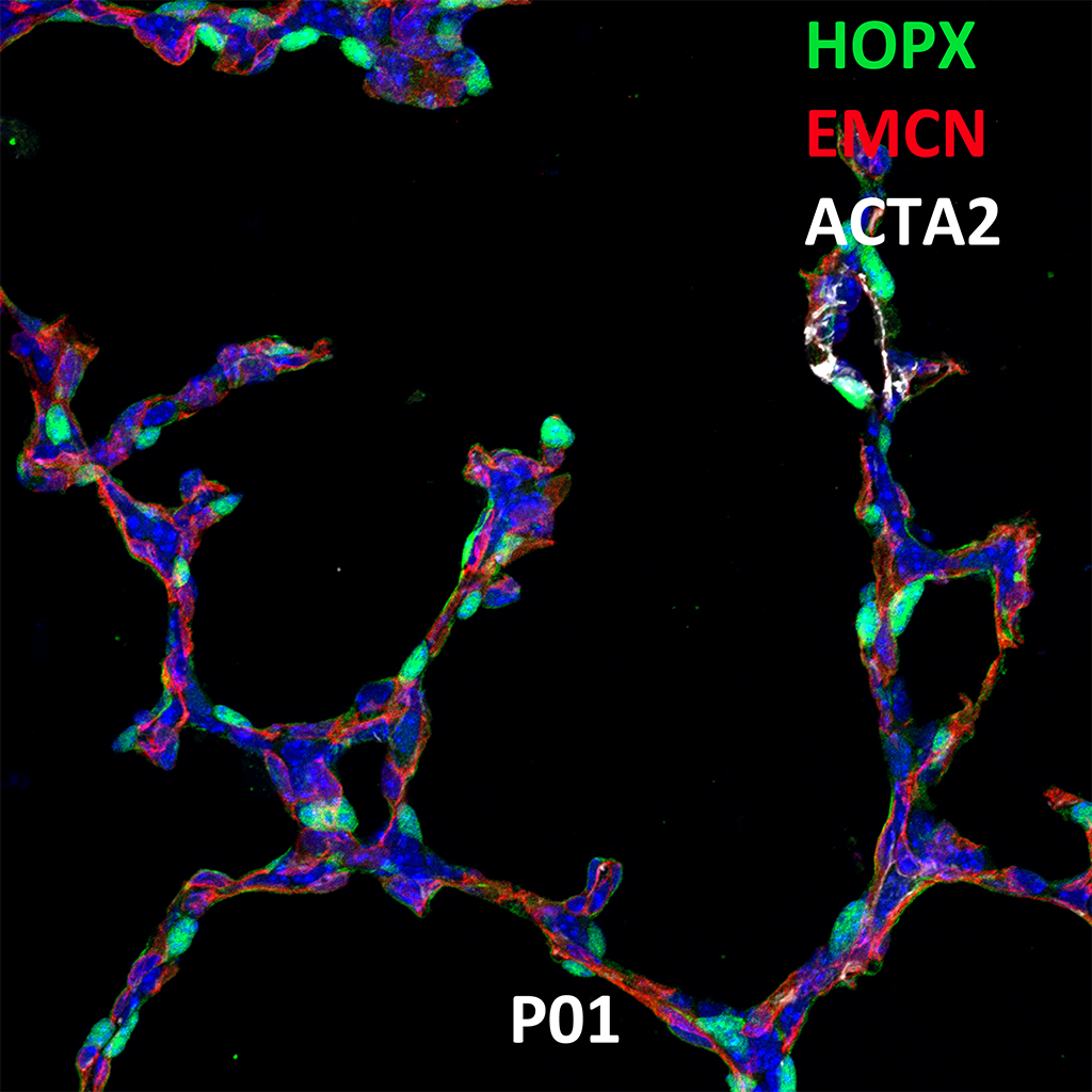 Post Natal Day 1 Confocal Imaging Showing Protein Expression of Hopx, Emcn, and Acta2 Genes