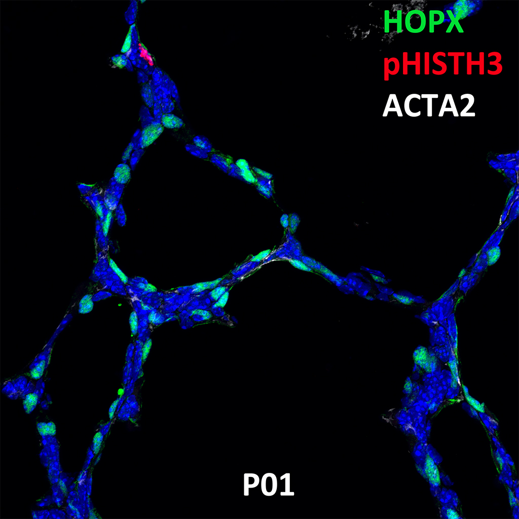 Post Natal Day 1 Confocal Imaging Showing Protein Expression of Hopx, Phish3, and Acta2 Genes