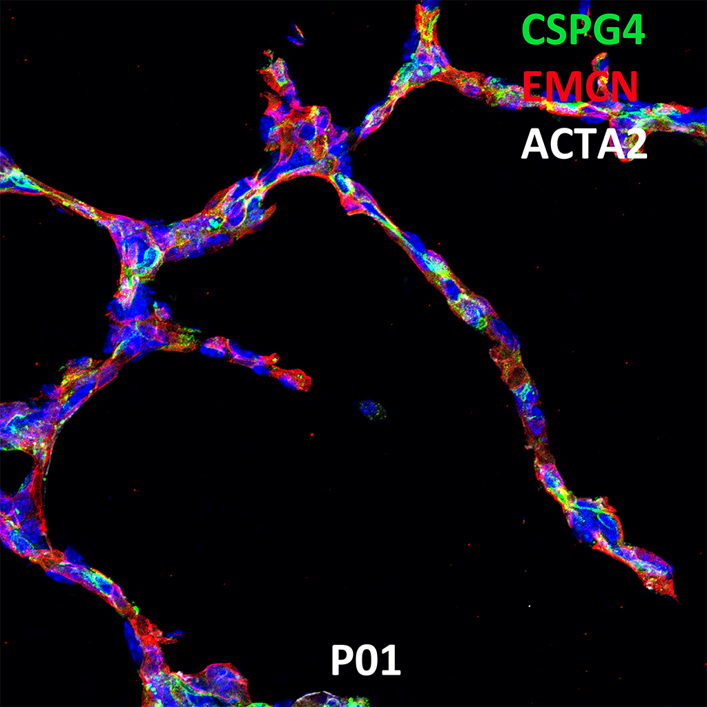 Post Natal Day 1 Confocal Imaging Showing Protein Expression of Cspg4, Emcn, and Acta2 Genes
