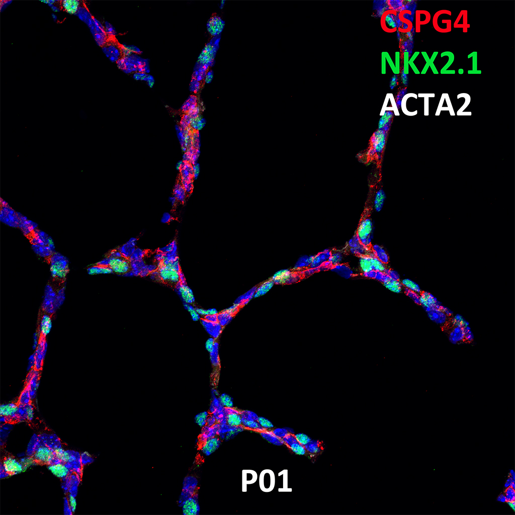 Post Natal Day 1 Confocal Imaging Showing Protein Expression of Cspg4, Nkx2.1, and Acta2 Genes