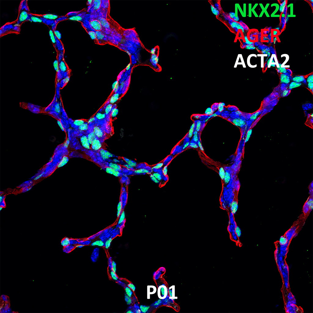 Post Natal Day 1 Confocal Imaging Showing Protein Expression of Nkx2.1, Ager, and Acta2 Genes