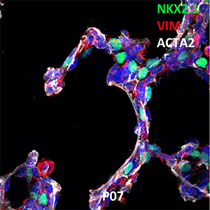 Postnatal Day 7 C57BL6 NKX2.1, VIM, and ACTA2 Confocal Imaging