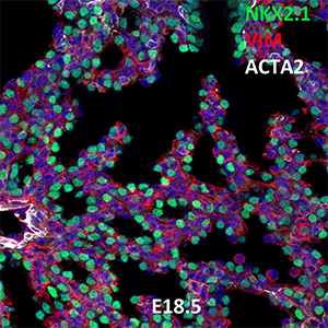 E18.5 C57BL6 NKX2.1, VIM, and ACTA2 Confocal Imaging