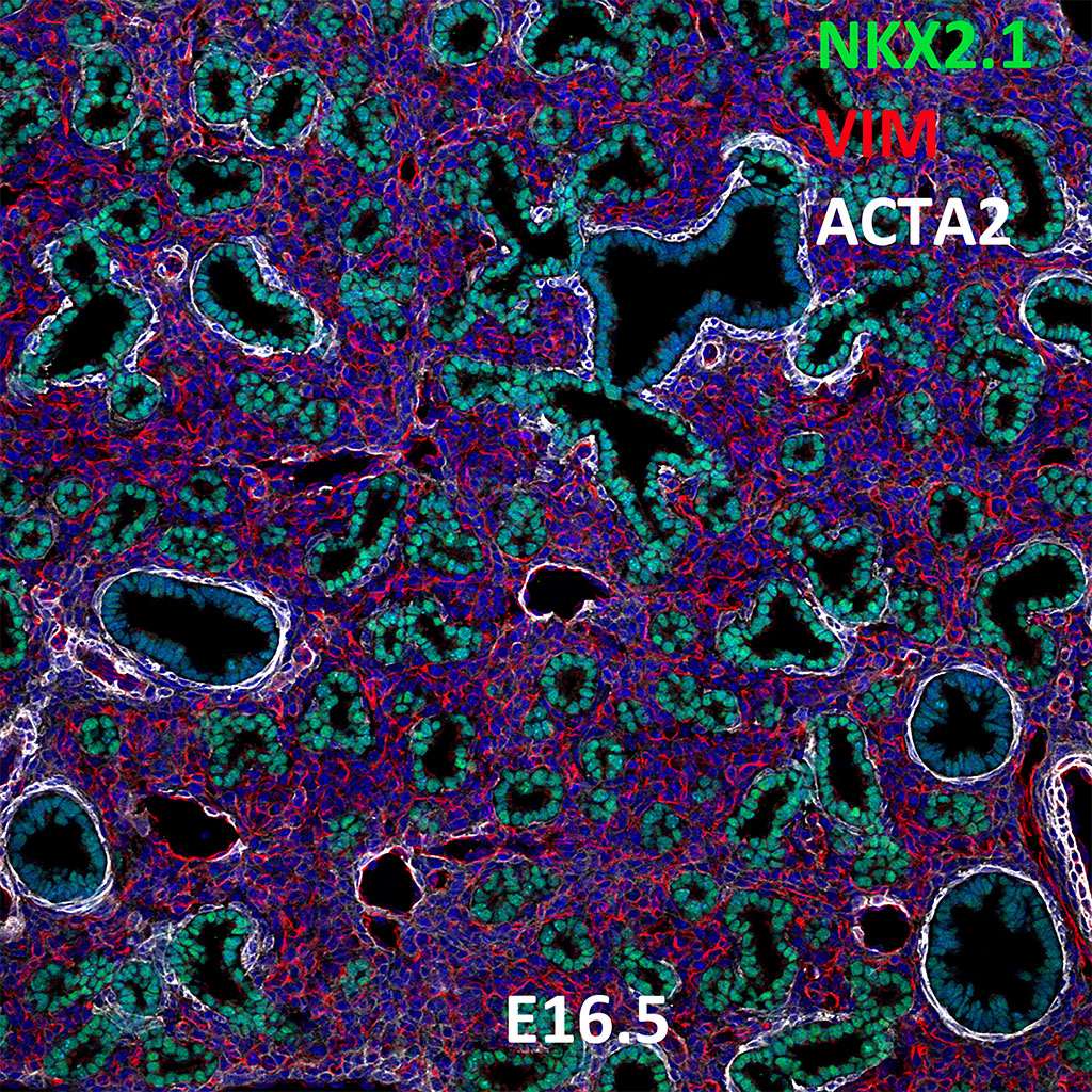 E16.5 Confocal Imaging Showing Protein Expression of Nkx2.1, Vim, and Acta2 Genes