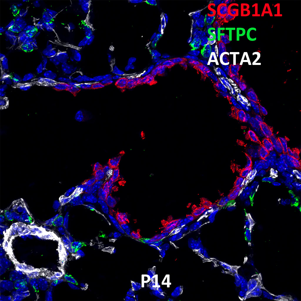 Post Natal Day 14 Confocal Imaging Showing Protein Expression of Sftpc, Scgb1a1, and Acta2 Genes