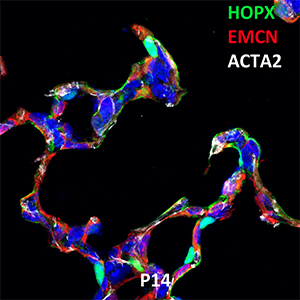 Postnatal Day 14 C57BL6 HOPX, EMCN, and ACTA2 Confocal Imaging