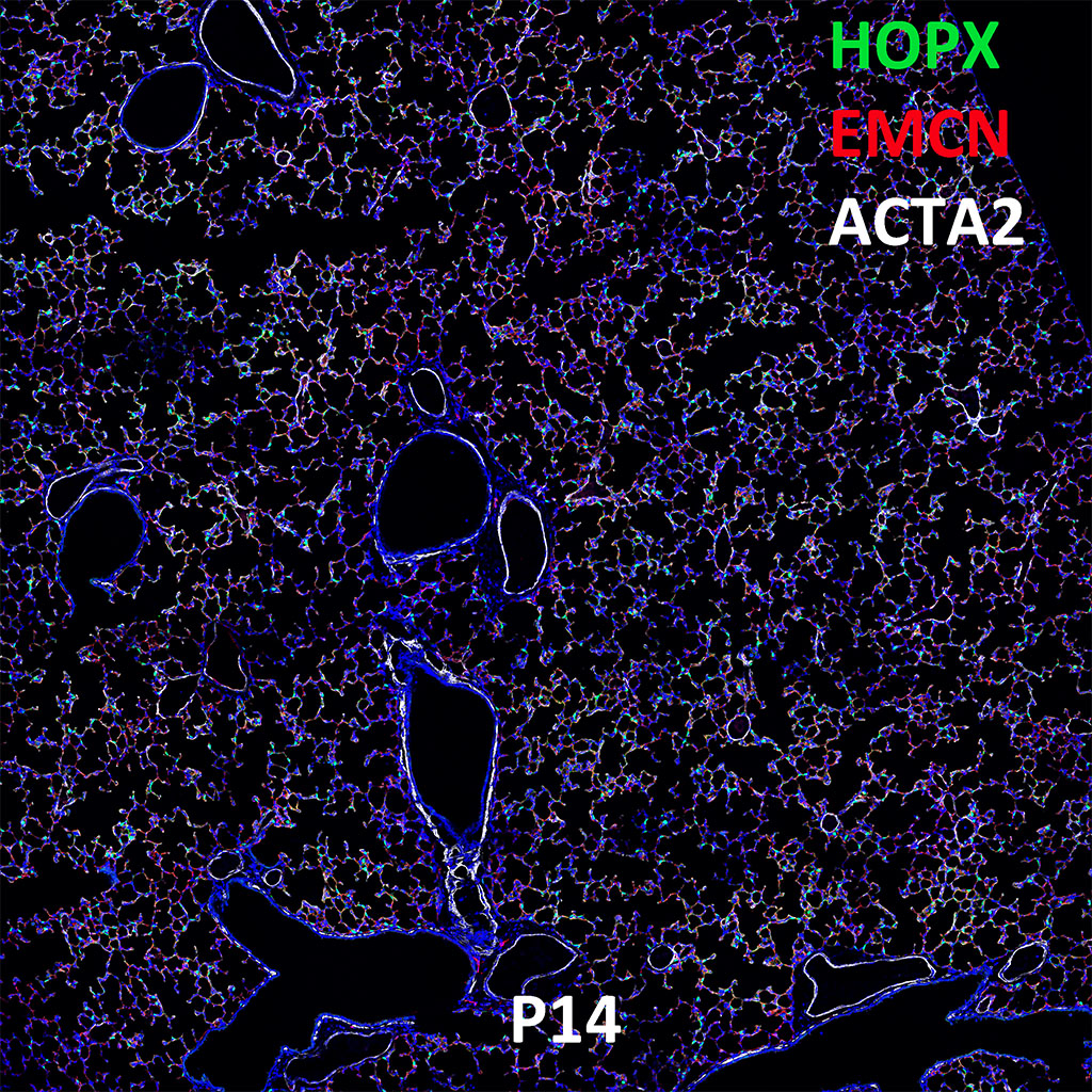 Post Natal Day 14 Confocal Imaging Showing Protein Expression of Hopx, Emcn, and Acta2 Genes
