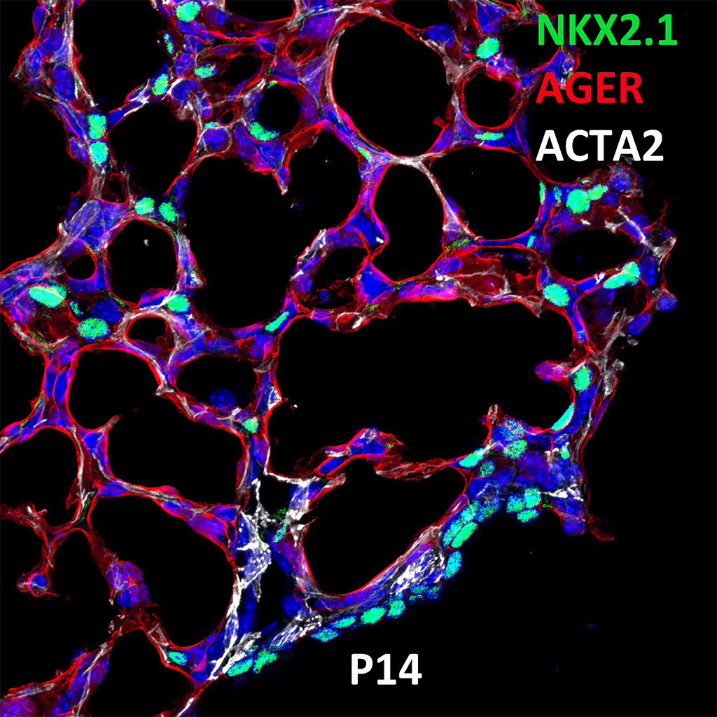 Post Natal Day 14 Confocal Imaging Showing Protein Expression of Nkx2.1, Ager, and Acta2 Genes