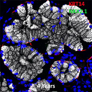 4 Year Old Human Lung KRT14, NKX2.1, and MUC5B Confocal Imaging