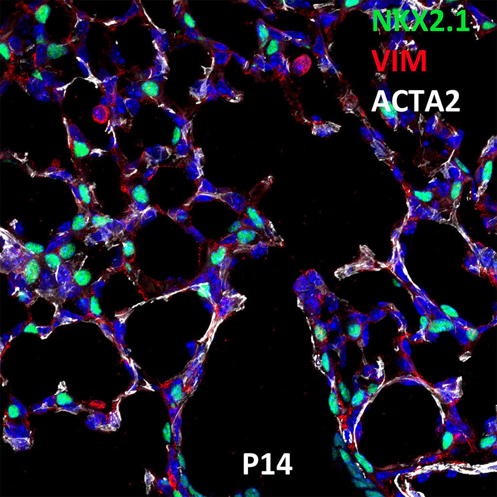 Post Natal Day 14 Confocal Imaging Showing Protein Expression of Nkx2.1, Vim, and Acta2 Genes