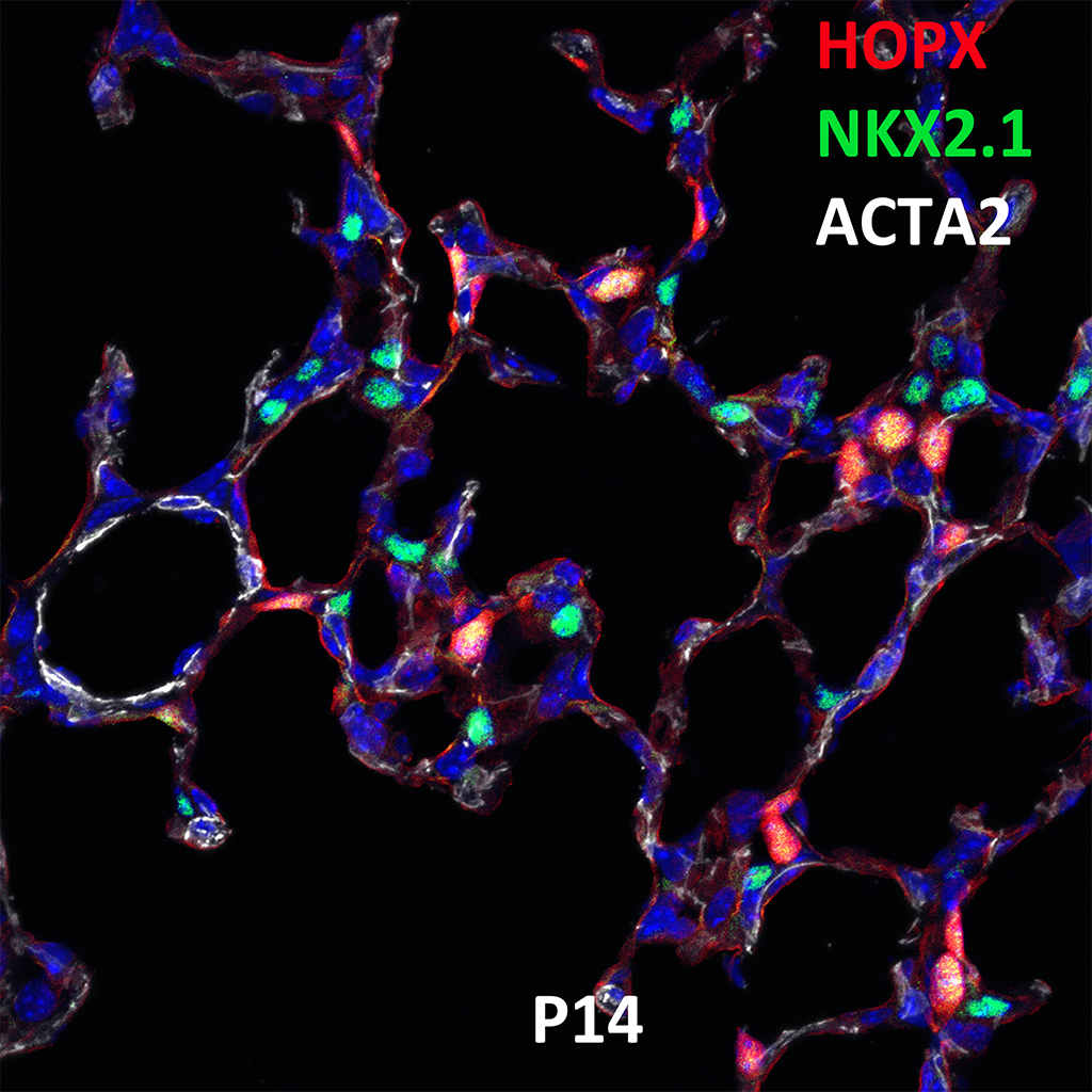 Post Natal Day 14 Confocal Imaging Showing Protein Expression of Hopx, Nkx2.1, and Acta2 Genes