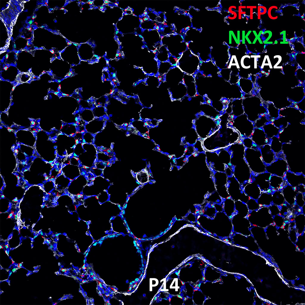 Post Natal Day 14 Confocal Imaging Showing Protein Expression of Sftpc, Nkx2.1, and Acta2 Genes
