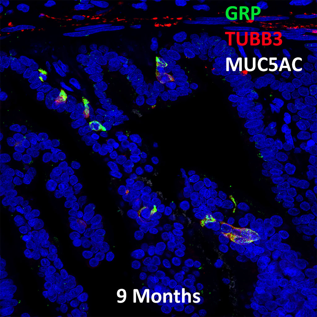 9  Month Old Human Lung Immunofluorescence and Confocal Imaging Showing  Expression of Grp, TubB3, and Muc5ac Genes