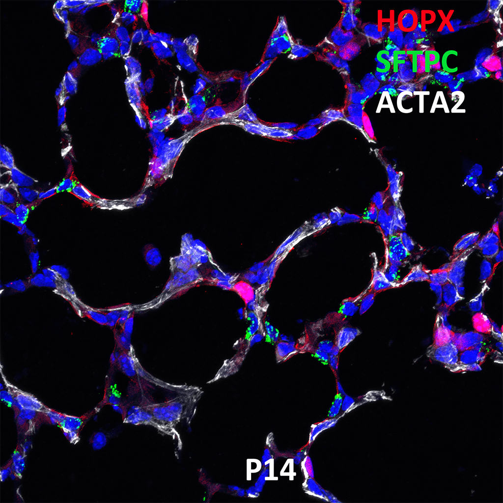 Post Natal Day 14 Confocal Imaging Showing Protein Expression of Hopx, Sftpc, and Acta2 Genes
