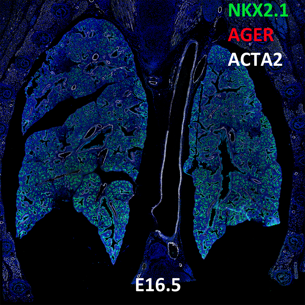 E16.5 Confocal Imaging Showing Protein Expression of Nkx2.1, Ager, and Acta2 Genes