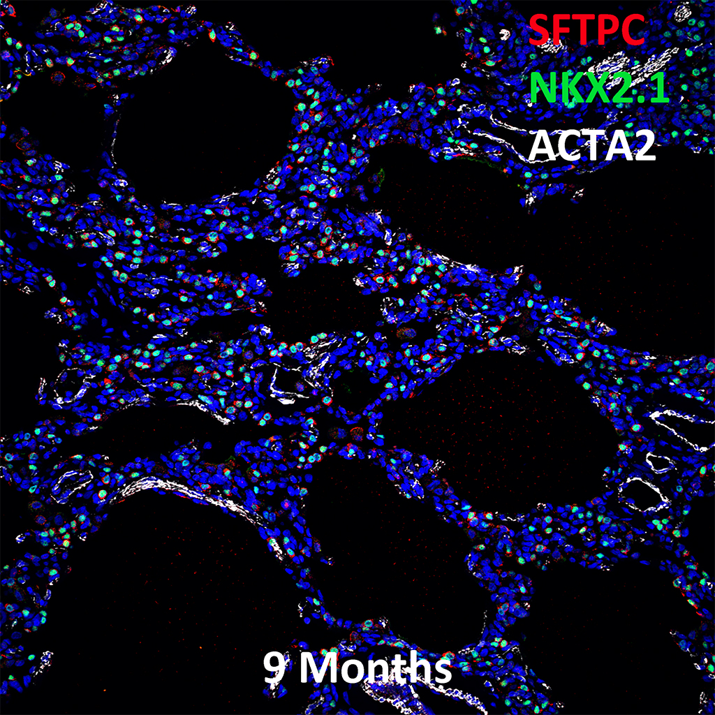 9  Month Old Human Lung Immunofluorescence and Confocal Imaging Showing  Expression of Sftpc, Nkx2.1, and Acta2 Genes