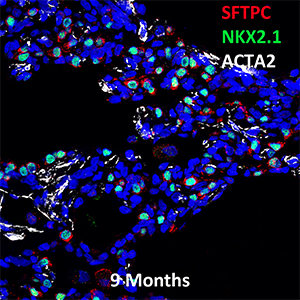 9 Month Old Human Lung SFTPC, NKX2.1, and ACTA2 Confocal Imaging