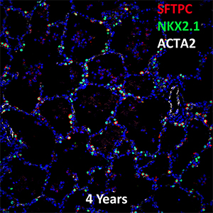 4 Year Old Human Lung SFTPC, NKX2.1, and ACTA2 Confocal Imaging