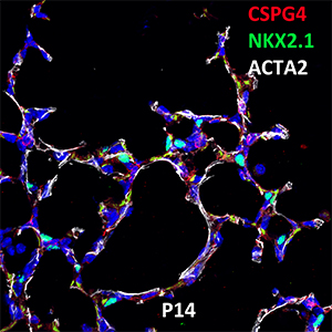 Postnatal Day 14 C57BL6 CSPG4, NKX2.1, and ACTA2 Confocal Imaging