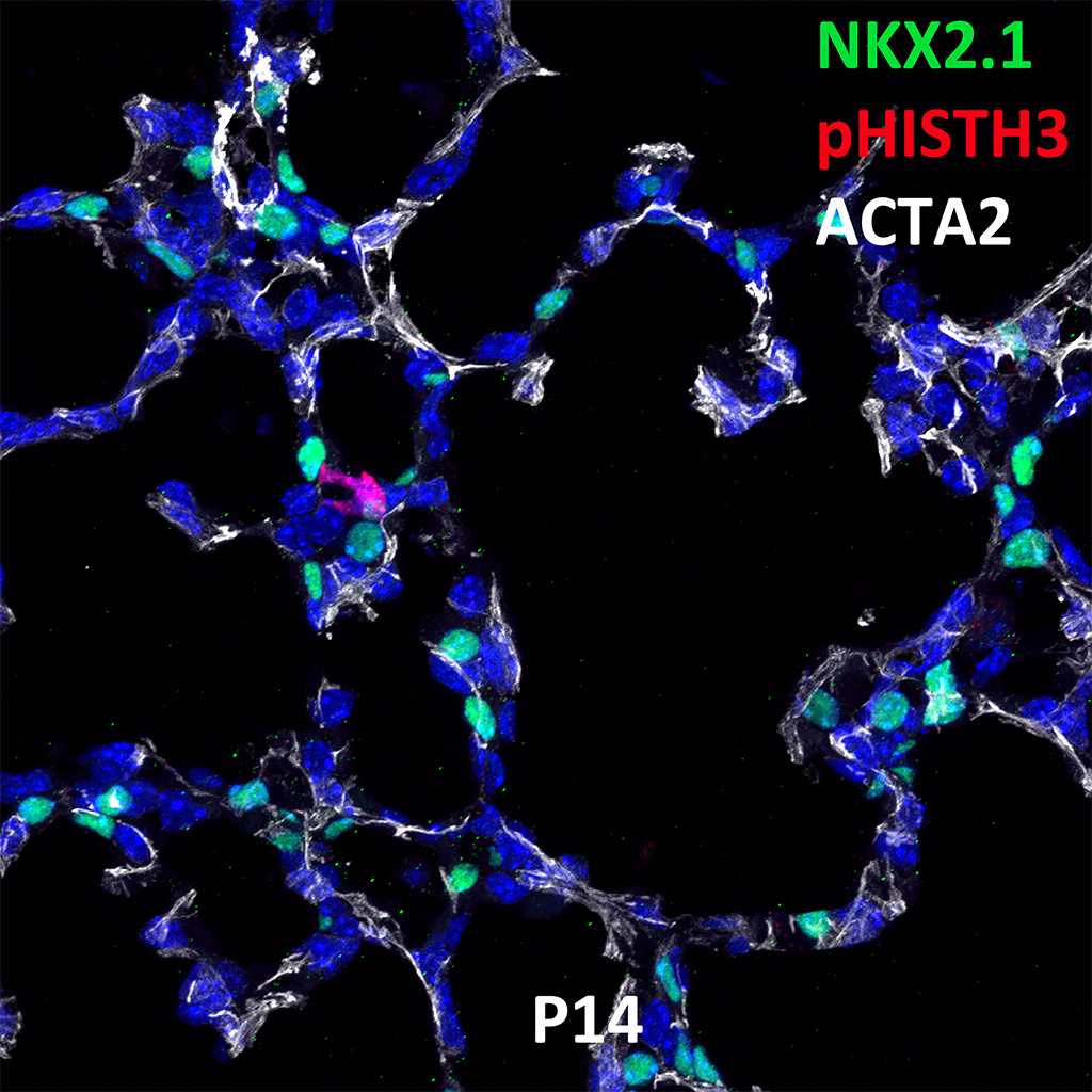 Post Natal Day 14 Confocal Imaging Showing Protein Expression of Nkx2.1, pHish3, and Acta2 Genes
