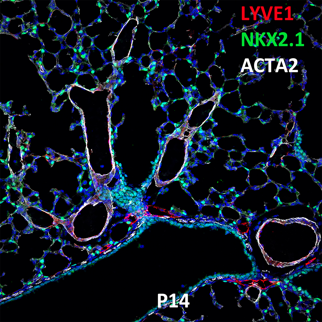 Post Natal Day 14 Confocal Imaging Showing Protein Expression of Lyve1, Nkx2.1, and Acta2 Genes