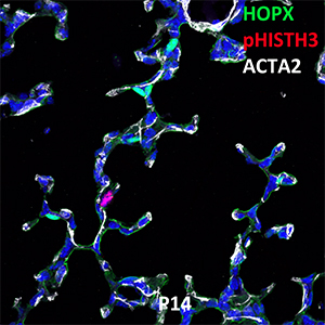Postnatal Day 14 C57BL6 HOPX, pHIST3H3, and ACTA2 Confocal Imaging