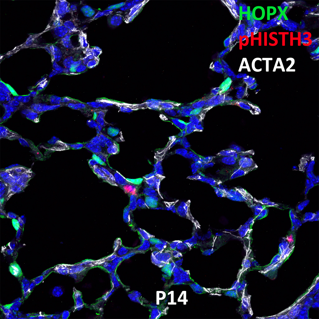 Post Natal Day 14 Confocal Imaging Showing Protein Expression of Hopx, pHish3, and Acta2 Genes