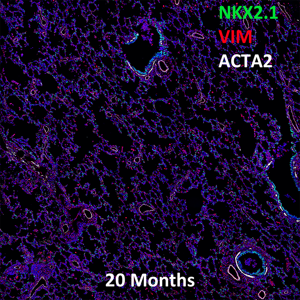 20 Month Old Human Lung Nkx21 Vim And Acta2 Confocal Imaging