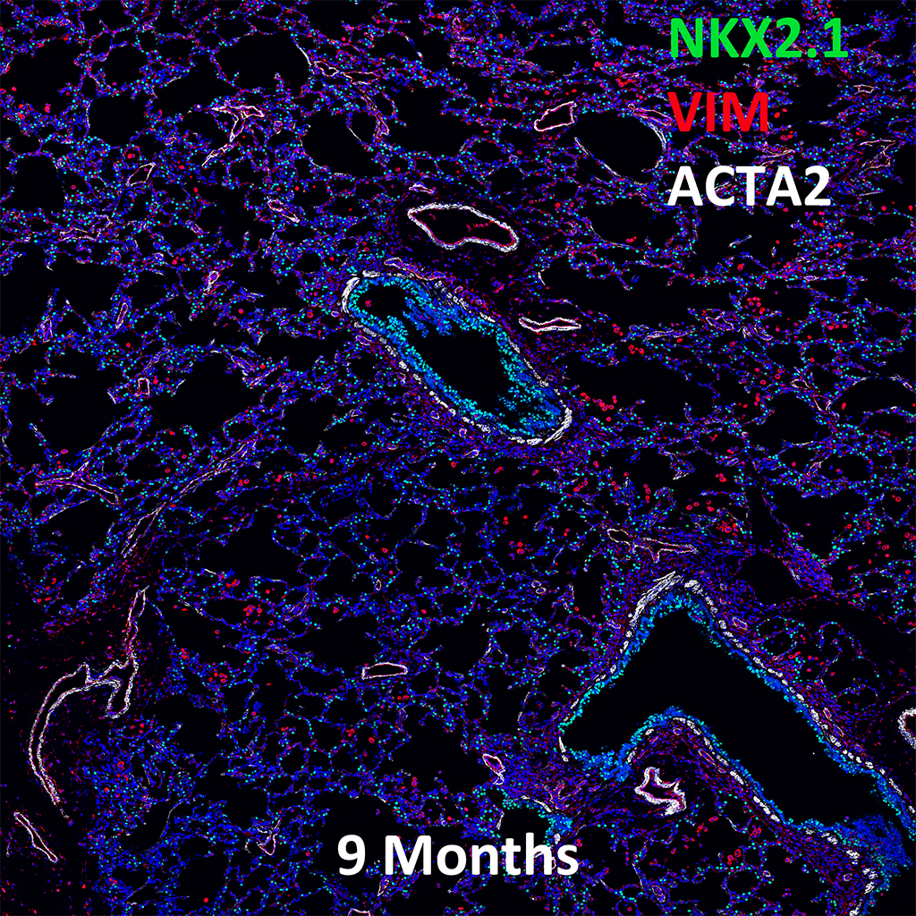 9 Month Human Lung Immunofluorescence and Confocal Imaging Showing  Expression of NKX2.1, VIM, and ACTA2