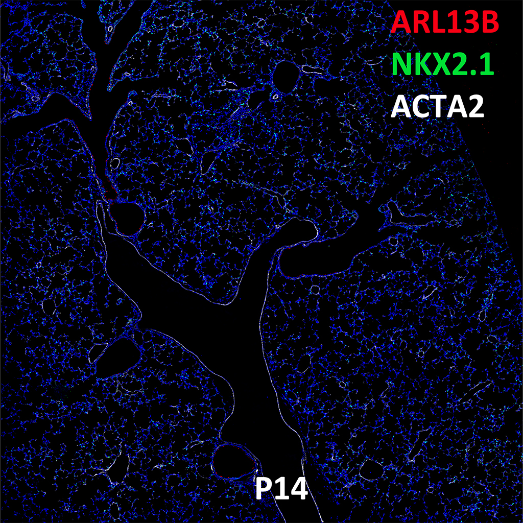 Post Natal Day 14 Immunofluorescence and Confocal Imaging Showing  Expression of ARL13B, NKX2.1, and ACTA2
