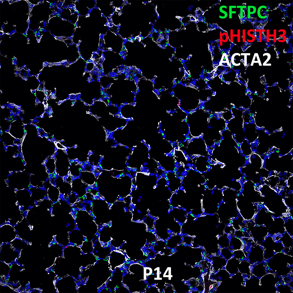 Post Natal Day 14 Confocal Imaging Showing Protein Expression of Sftpc, pHist3, and Acta2 Genes