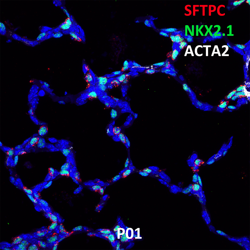 Post Natal Day 1 Confocal Imaging Showing Protein Expression of Sftpc, Nkx2.1, and Acta2 Genes
