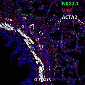 4 Year Old Human Lung NKX2.1, VIM, and ACTA2 Confocal Imaging