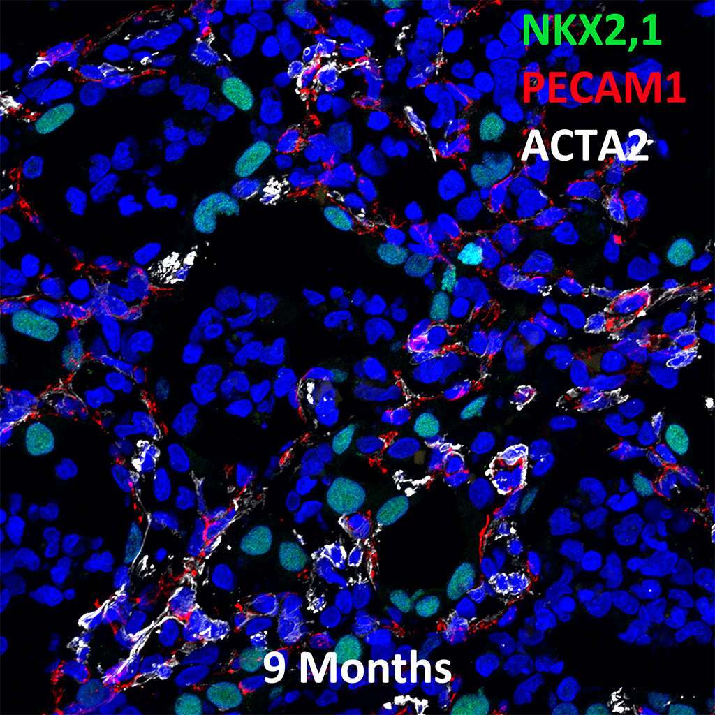 9  Month Old Human Lung Immunofluorescence and Confocal Imaging Showing  Expression of Nkx2.1, Pecam-1, and Acta2 Genes