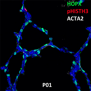Postnatal Day 1 C57BL6 HOPX, pHIST3H3, and ACTA2 Confocal Imaging