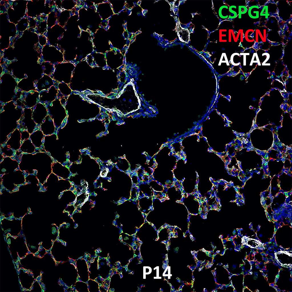 Post Natal Day 14 Confocal Imaging Showing Protein Expression of Cspg4, Emcn, and Acta2 Genes