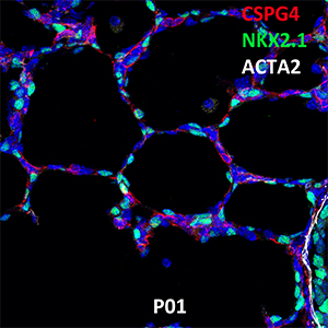 Postnatal Day 1 C57BL6 CSPG4, NKX2.1, and ACTA2 Confocal Imaging
