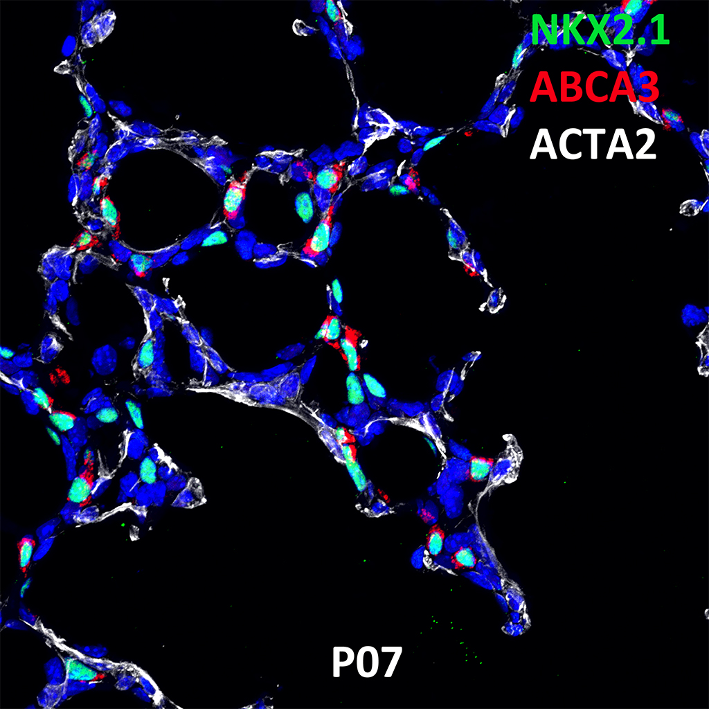 Post Natal Day 7 Confocal Imaging Showing Protein Expression of Nkx2.1, Abca3 and Acta2 Genes