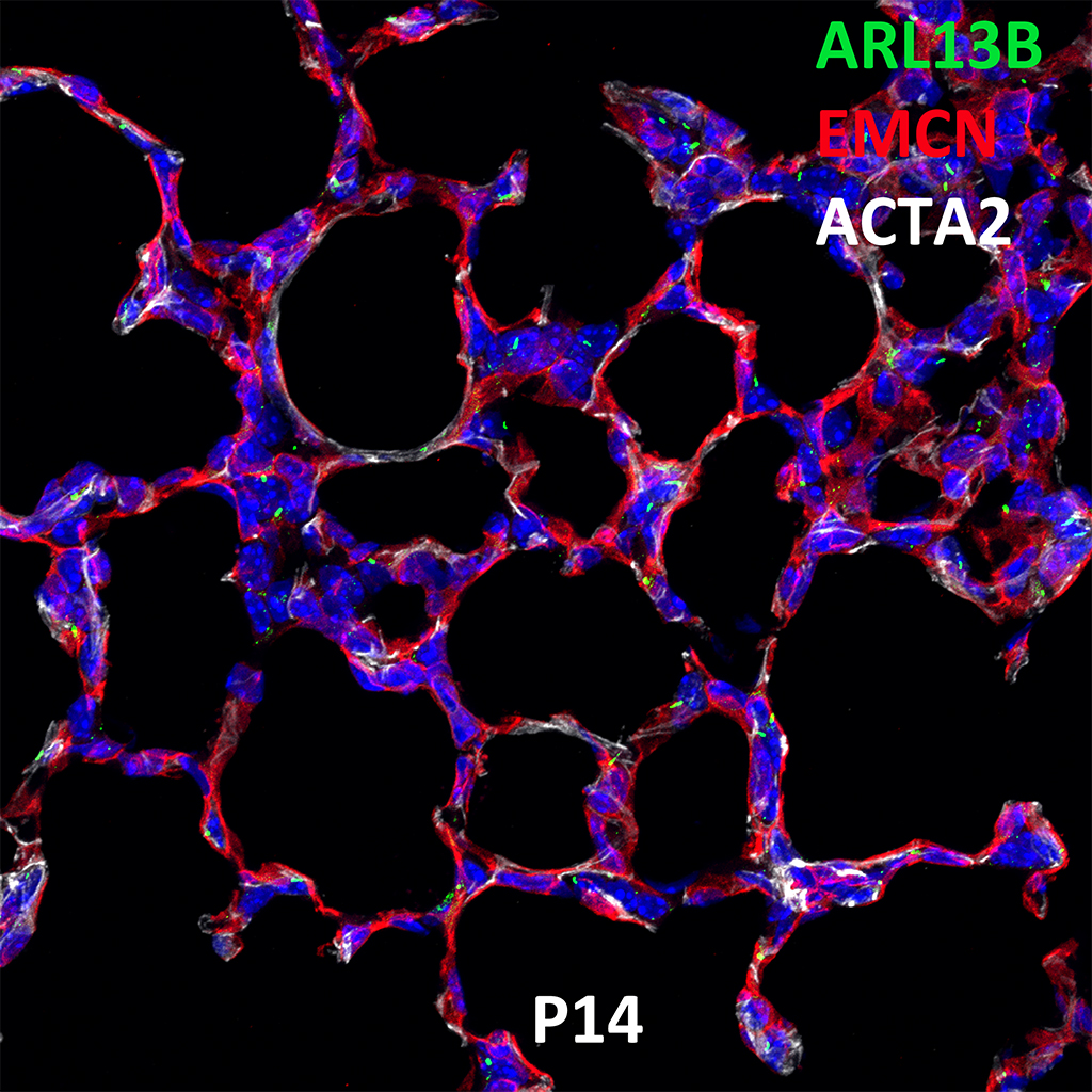 Post Natal Day 14 Confocal Imaging Showing Protein Expression of Arl13b, Emcn, and Acta2 Genes