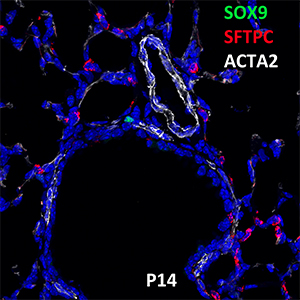 Postnatal Day 14 C57BL6 SOX9, SFTPC, and ACTA2 Confocal Imaging