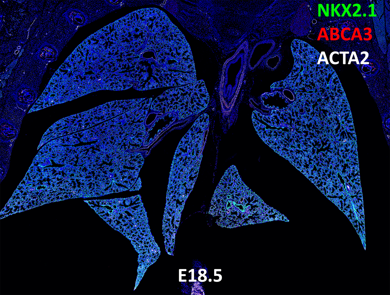 E18.5 Confocal Imaging Showing Protein Expression of Nkx2.1, Abca3 and Acta2 Genes