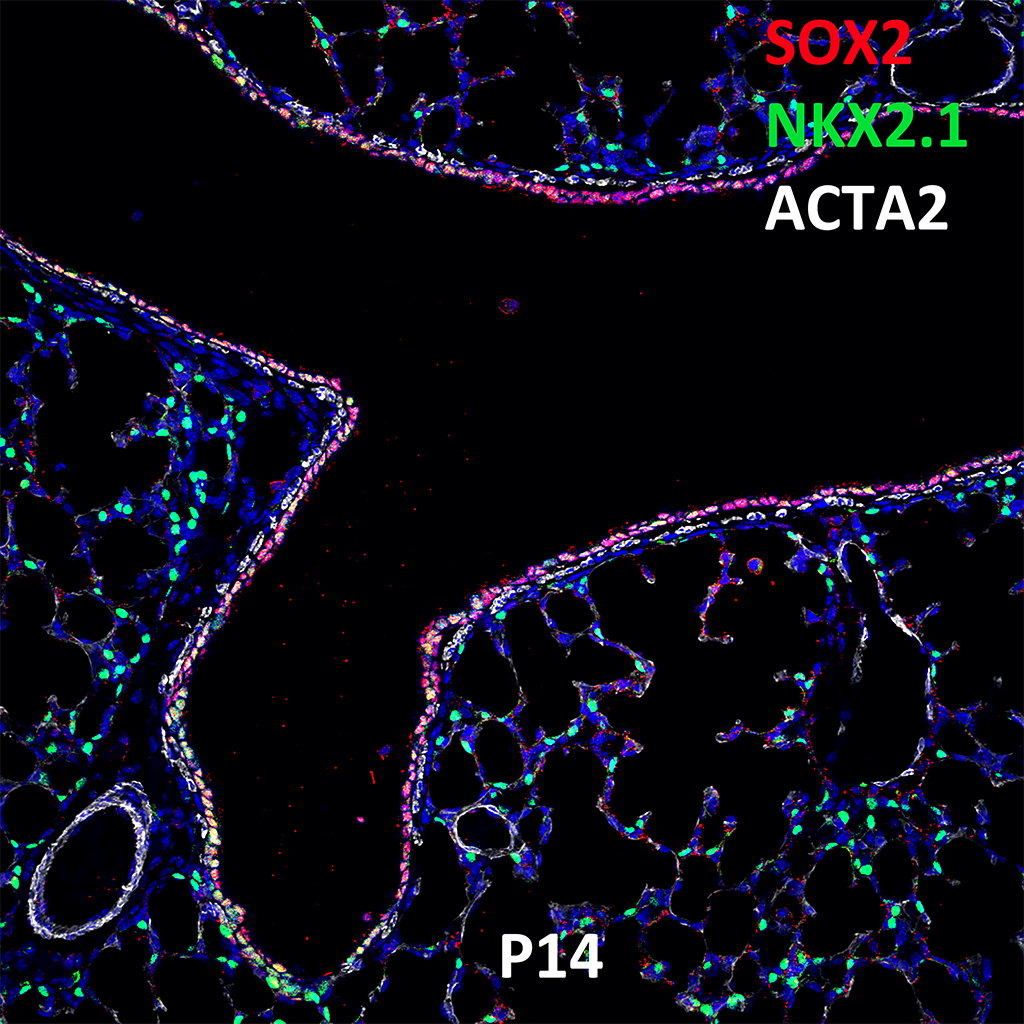 Post Natal Day 14 Confocal Imaging Showing Protein Expression of Sox9, Nkx2.1, and Acta2 Genes