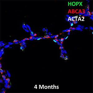 4 Month Human Lung HOPX, ABCA3, and ACTA2 Confocal Imaging