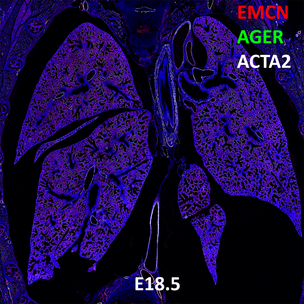 E18.5 Confocal Imaging Showing Protein Expression of Emcn, Ager and Acta2 Genes
