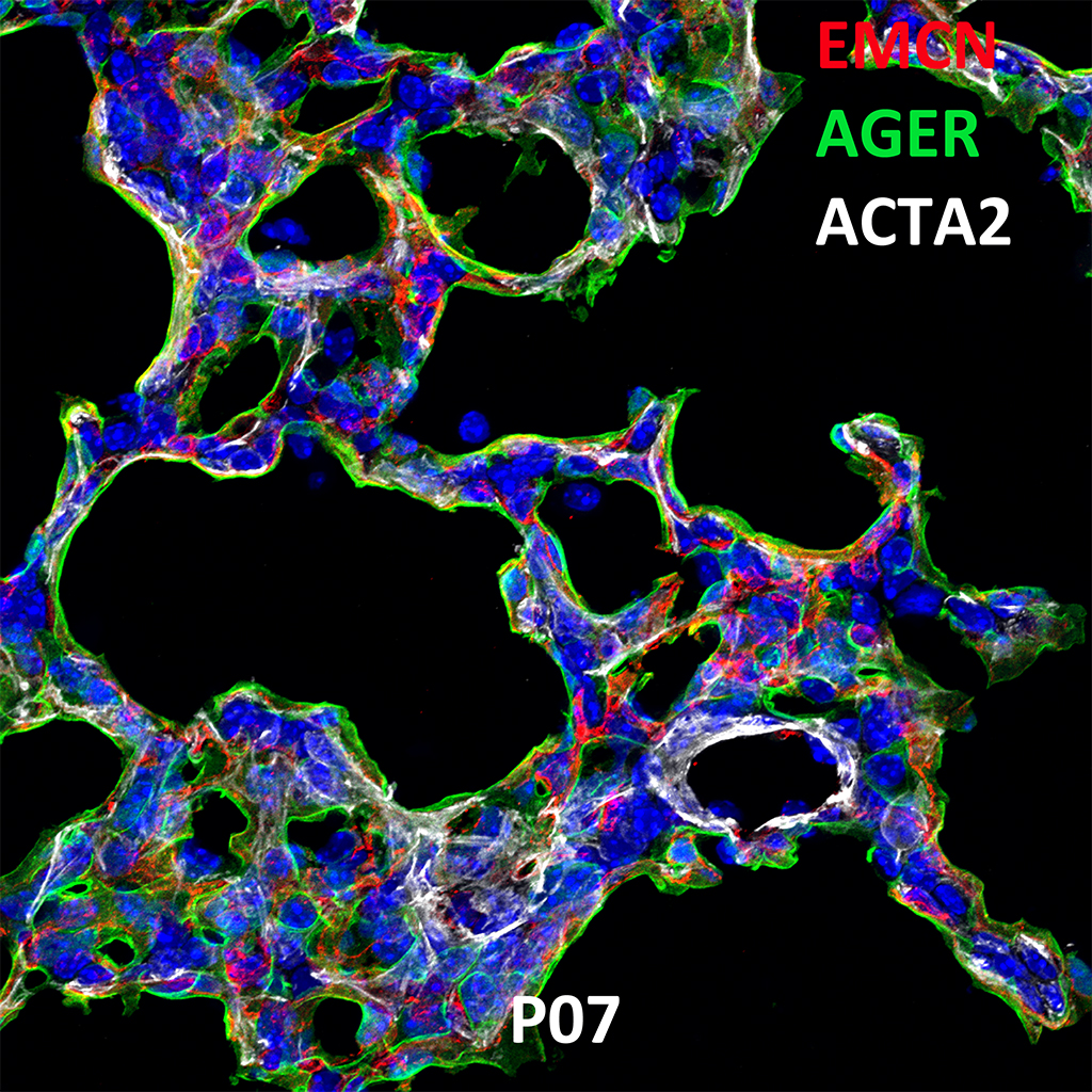 Post Natal Day 7 Confocal Imaging Showing Protein Expression of Emcn, Ager and Acta2 Genes