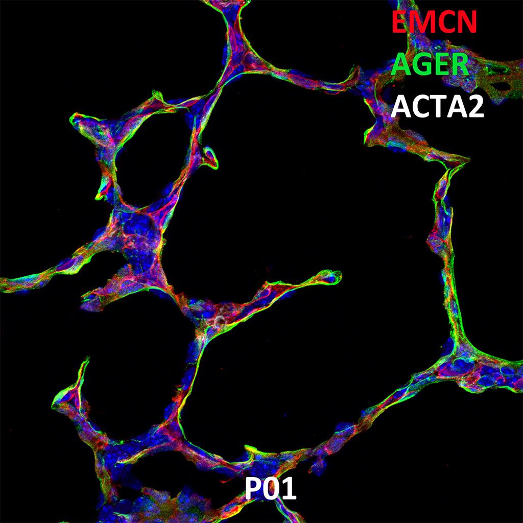 PND01 Confocal Imaging Showing Protein Expression of Emcn, Ager and Acta2 Genes